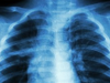 Artificial Intelligence Could Help Diagnose Tuberculosis