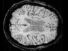 Stanford Researchers Develop AI that Can Help Diagnose Alzheimer's Disease