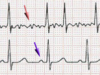 AI Helps Detect Atrial Fibrillation Recurrence with High Accuracy