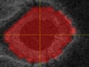 AI Research Detects Glaucoma with 94 Percent Accuracy