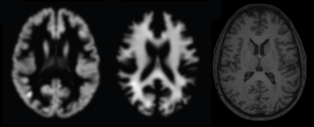 predicting-brain-age