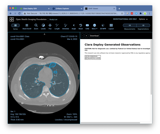 The integrated OHIV viewer showing the visualization of the Lung and Lesion segmentation and the classification report.