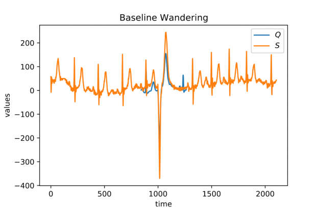 A plot consisting of two graphs depicting a short heartbeat sequence aligned in a much longer stream of continuously measured heartbeats. The locally averaged stream values are drifting over time.