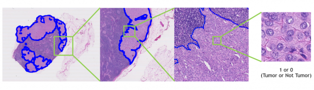 A sample image from the CAMELYON-16 dataset that is segmented, and it being zoomed in on over four frames. The final frame shows the most zoomed in picture with text signifying it will classify the image as Tumor or Not Tumor