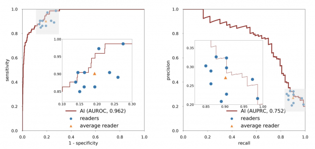 AUROC and AUPRC curves of the performance of the AI system in the internal test set.