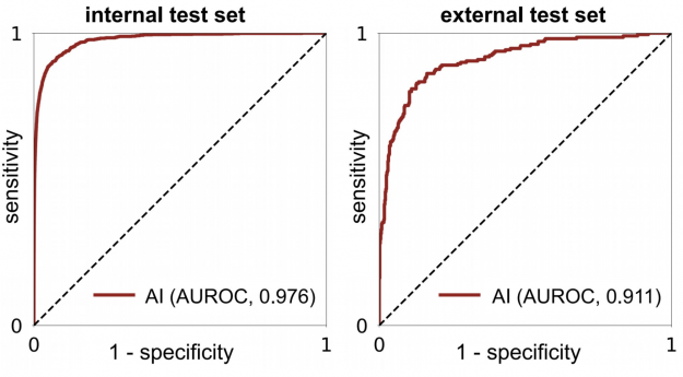 The AI system achieves a 0.976 and 0.911 AUROC in the internal and external test sets, respectively.