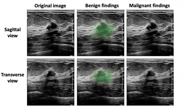 The AI system produces saliency maps that identify the benign and malignant lesions.