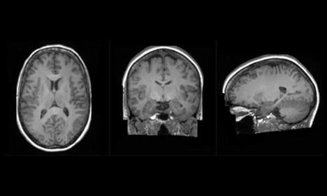 3D image of a brain from 3 angles