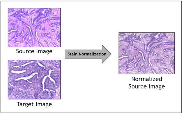The stain normalization filter accepts a source image and a target image and returns a normalized source image.