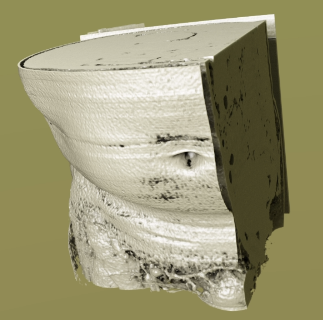 A visual example of a rendered 3D image of the abdomen using the 3D image processing pipeline with cropping using shared memory.