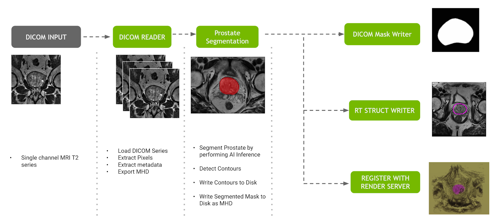This image describes the prostate segmentation pipeline, which shows the steps of receiving DICOM, loading and extracting content from DICOM, creating the segmentation, and delivering the end result, including a DICOM mask output, a DICOM RT Struct output, and rendering using Clara Render Server.